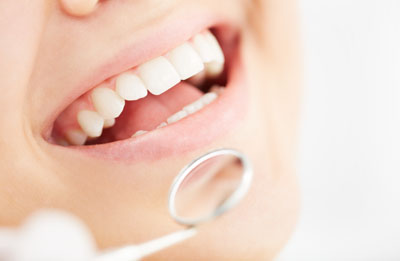 Reasons To Choose Dental Veneers For A New Smile