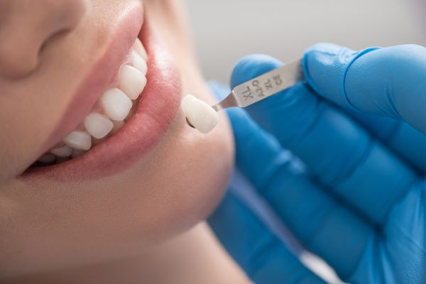Dental Veneers: An Overview For People Debating Getting The Procedure