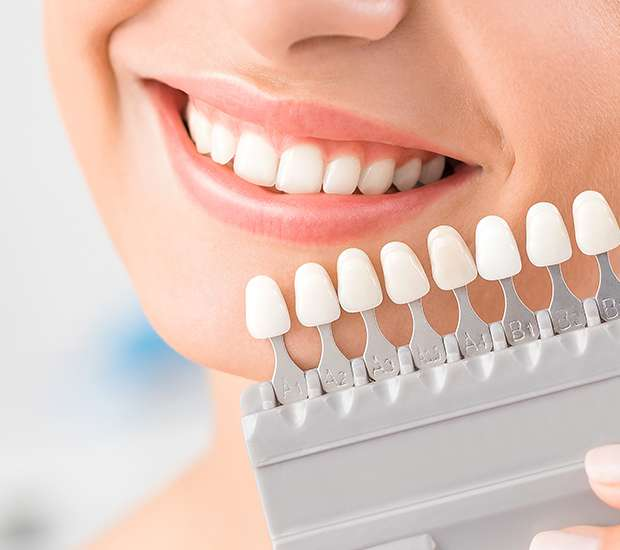 Scottsdale Dental Veneers and Dental Laminates