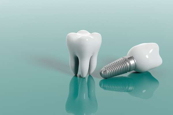 Multiple Teeth Replacement Options: One Implant For Two Teeth